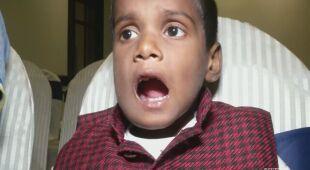 Lekarze usunęli 7-latkowi ponad 500 zębów